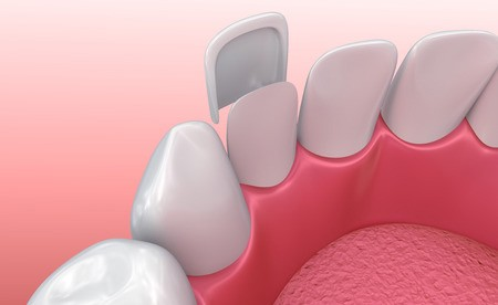 A graphic illustrates how veneers are placed atop the natural tooth.