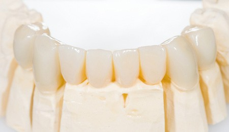An example of a dental bridge sits on a white table.
