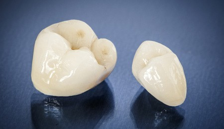 Dental crowns sit on a black table.