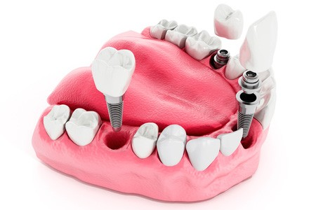 A model illustrates how dental implants work for oral health.