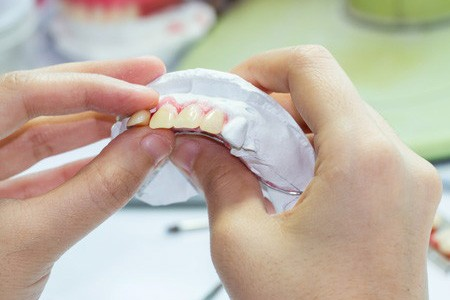 A dentist in Ahwatukee creates a custom set of dentures.