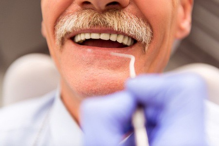 An old man with a mustache smiles for the dentist to check his dentures.