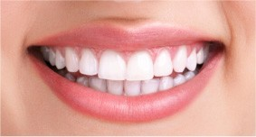 A female patient in Ahwatukee smiles after her whitening treatment, revealing dazzling, white teeth.