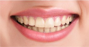 A female patient in Ahwatukee smiles before her teeth whitening treatment, revealing yellow teeth.