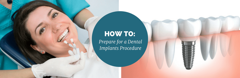 How to Prepare for a Dental Implants Procedure